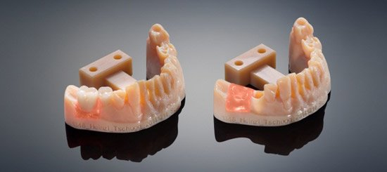 Wydruki 3D dentystyczne