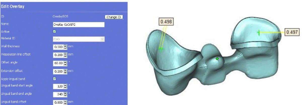 projektowanie_koron_i_mostow_pod_DMLS_SLM_1