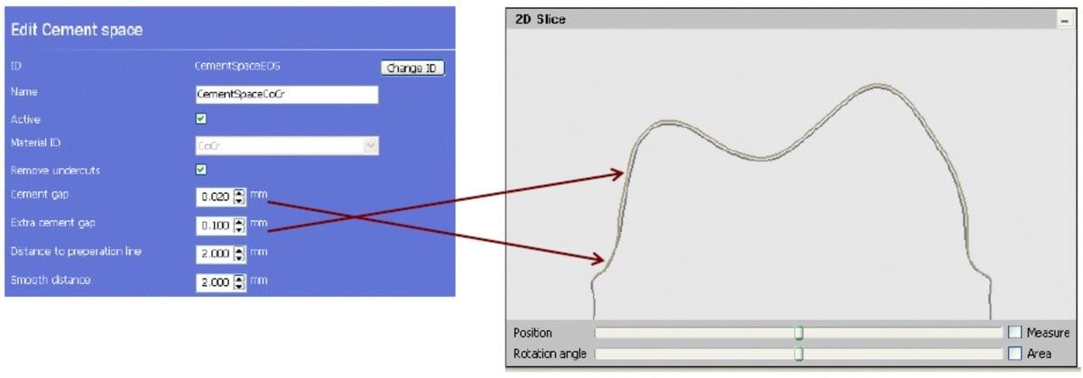 projektowanie_koron_i_mostow_pod_DMLS_SLM_2