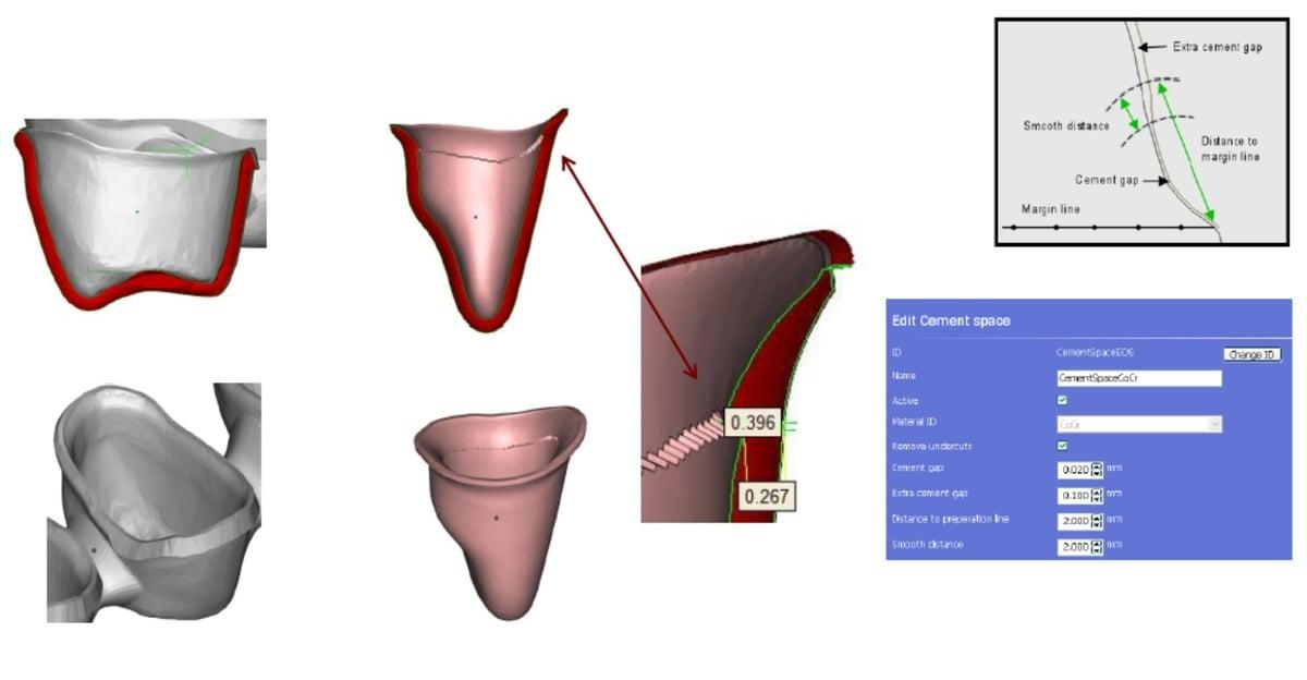 projektowanie_koron_i_mostow_pod_DMLS_SLM_3