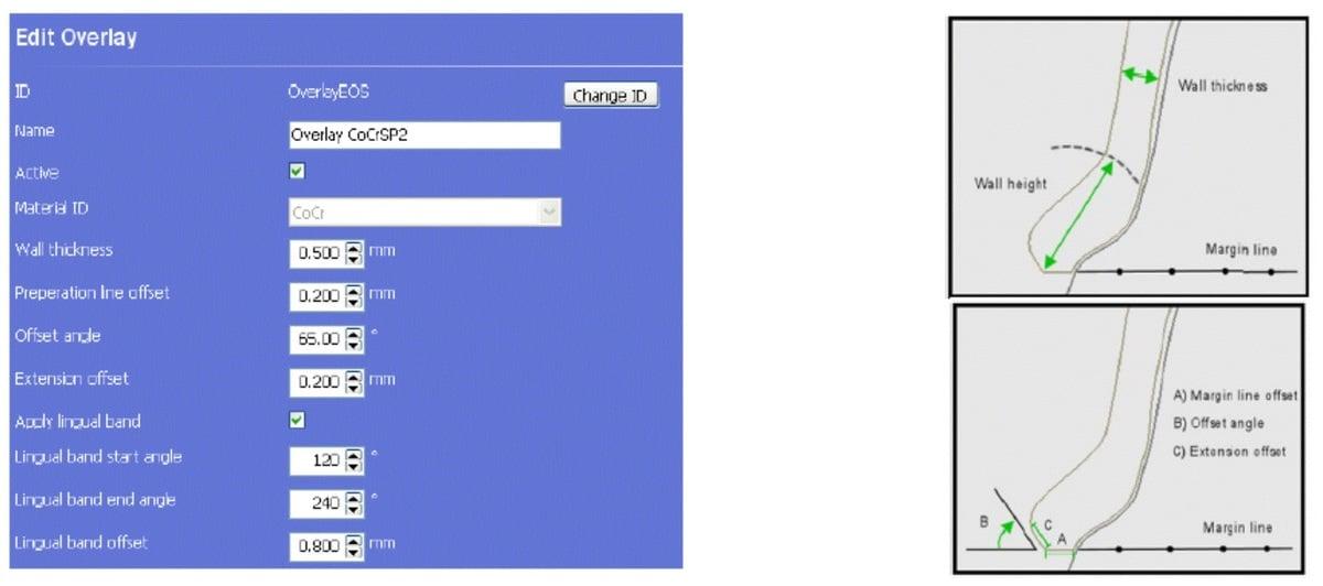 projektowanie_koron_i_mostow_pod_DMLS_SLM_4